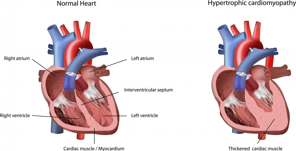 Hypertrophic cardiomyopathy is a heart condition where the walls of the heart have become thickened, making it difficult for the heart to pump efficiently.
