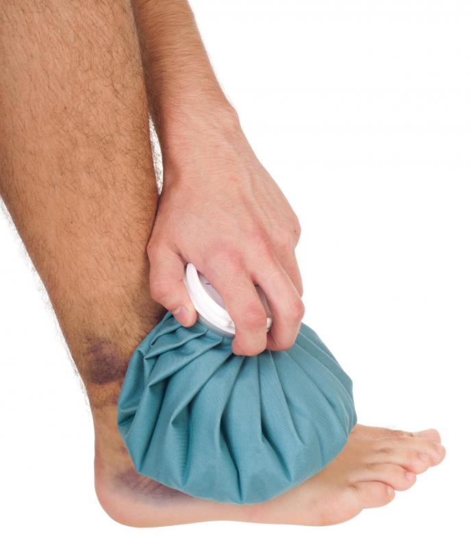 Ice therapy may be helpful in treating a pulled muscle.