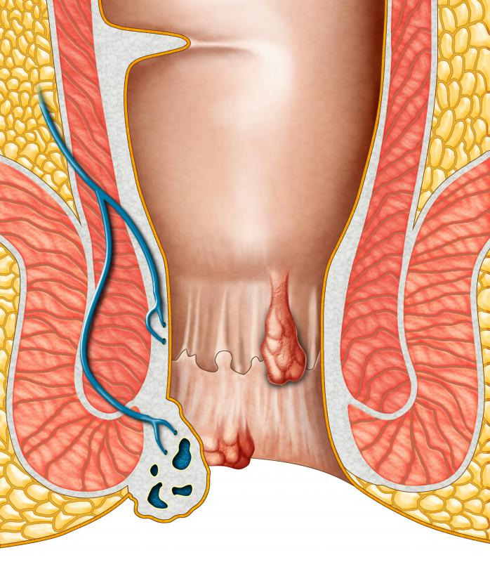 A patient may be placed in the Sims' position in order for a doctor to examine hemorrhoids.