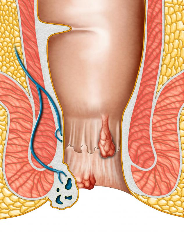 Constipation may cause hemorrhoids that protrude from the anus, which can in turn cause blood stool.