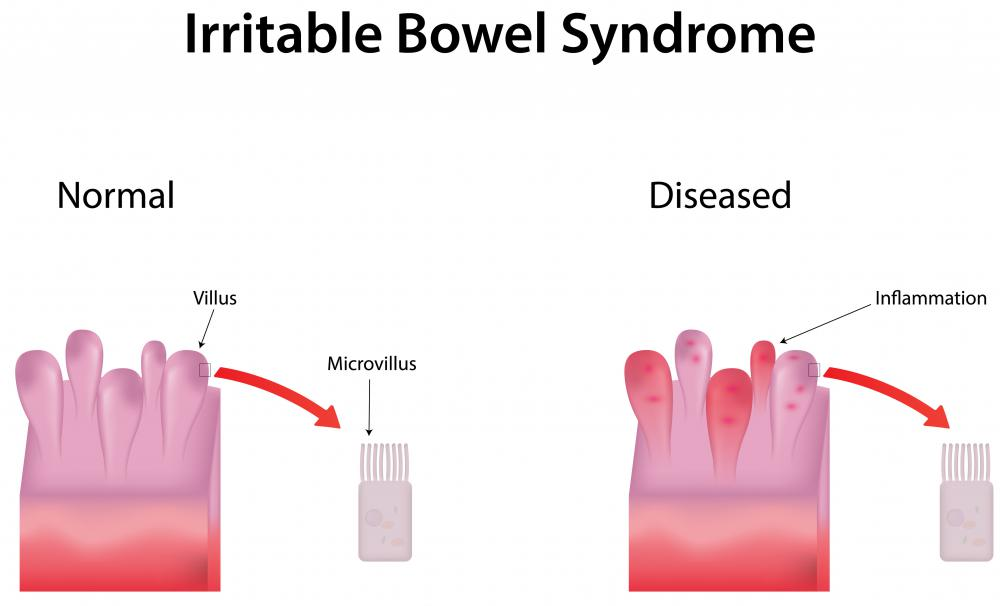 Irritable bowel syndrome may cause similar symptoms to a peptic ulcer, and must be ruled out first.