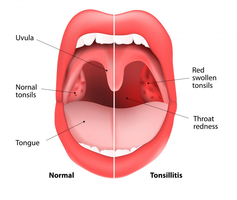 Inflammation of the tonsils is referred to as tonsillitis.
