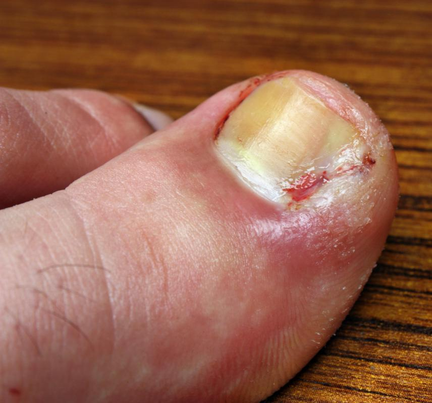 Untreated athlete's foot will eventually invade the bed of toenails.