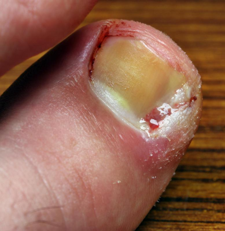 A podiatrist may deal with painful irritations such as an ingrown toenail.