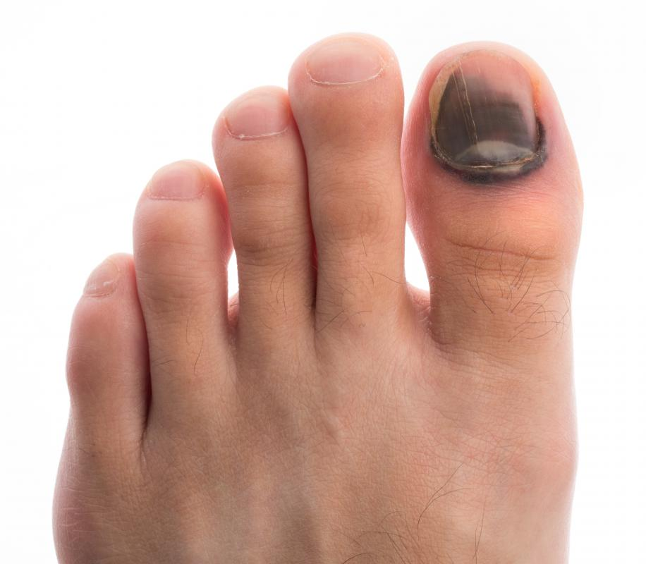 Injuries can cause toenail splitting.
