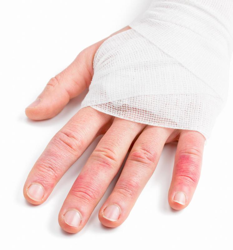 Certain types of trauma to the hands can cause knuckle swelling.