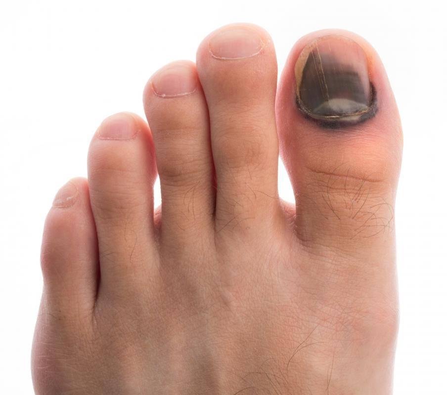 Subungal hematomas cause toenail bleeding marked by black discoloration under the nail.