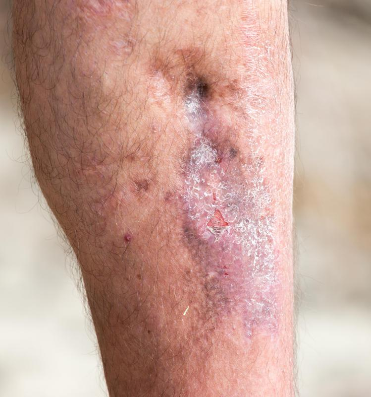 Slow-healing lesions and chronic leg ulcers are common in diabetics at risk of acrocyanosis.