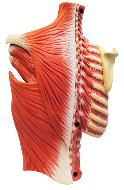 The intercostal muscles are those muscle bands that surround the ribs.