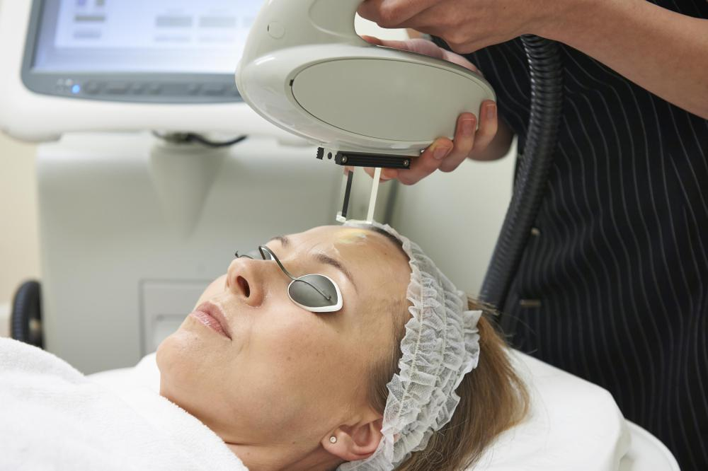 Intense pulsed light photorejuvenation may be used safely with microdermabrasion.