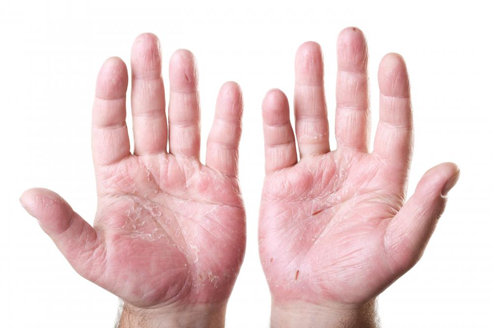 Hand acupressure may help relieve pain.