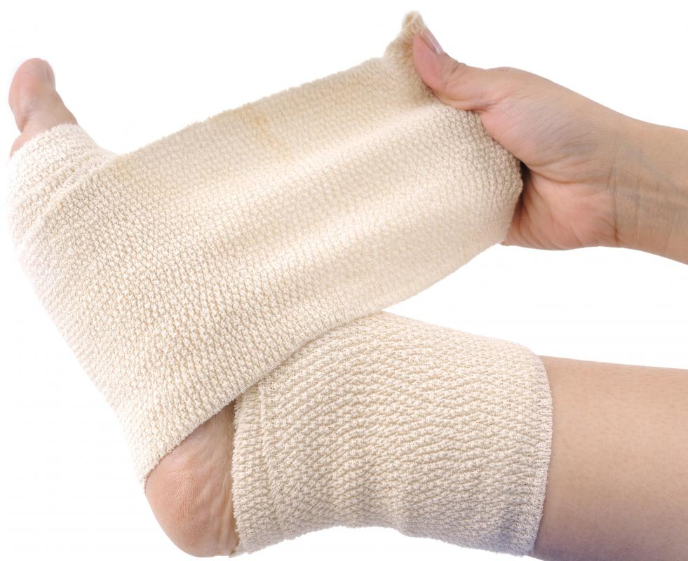 Elastic bandages can help support swollen ankles.