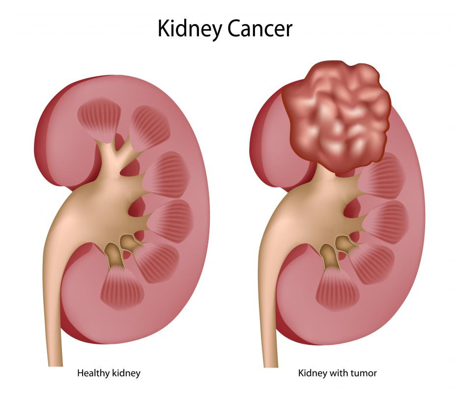 An example of a healthy kidney and one with cancer, which can cause blood clots in urine.