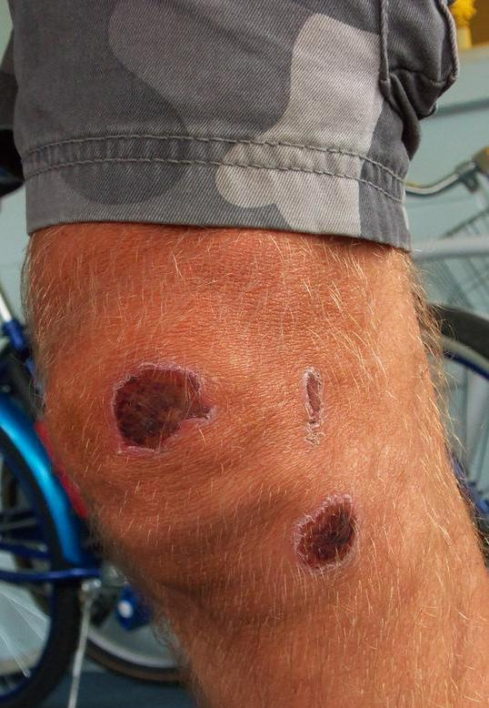 It can be a good idea to provide extra bandaging when a scab is on a joint like the knee.