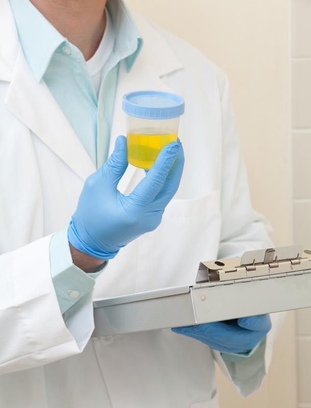 A lab technician holding a urine sample.