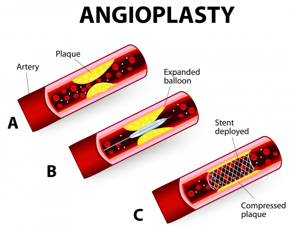 Angioplasty may be used to treat blocked coronary arteries caused by high levels of cholesterol in the blood.