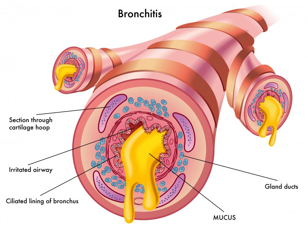 When the bronchial tubes are inflamed, mucus is produced and the individual experiences difficulty breathing.