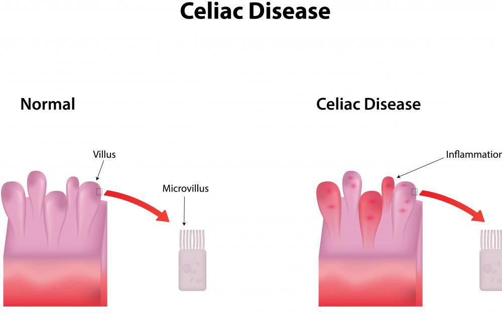 ALT may be elevated in someone with celiac disease.