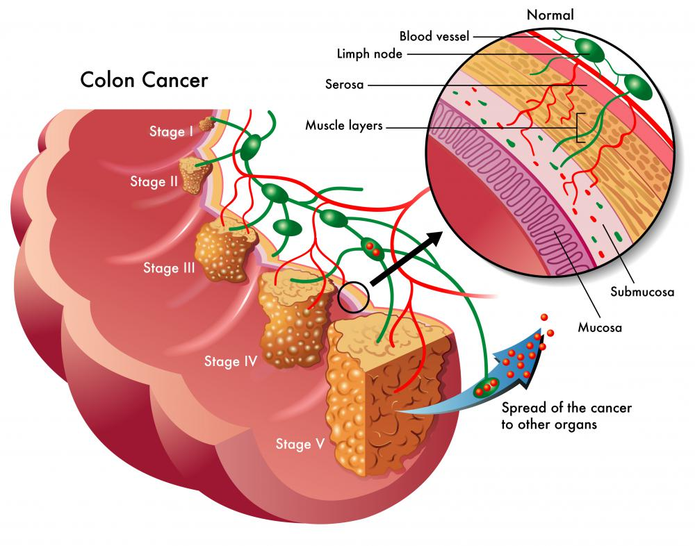 Colon cancer may be diagnosed from a stool test.