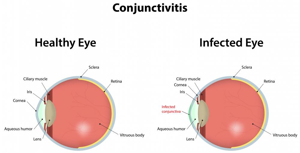 Blepharitis is usually associated with conjunctivitis.