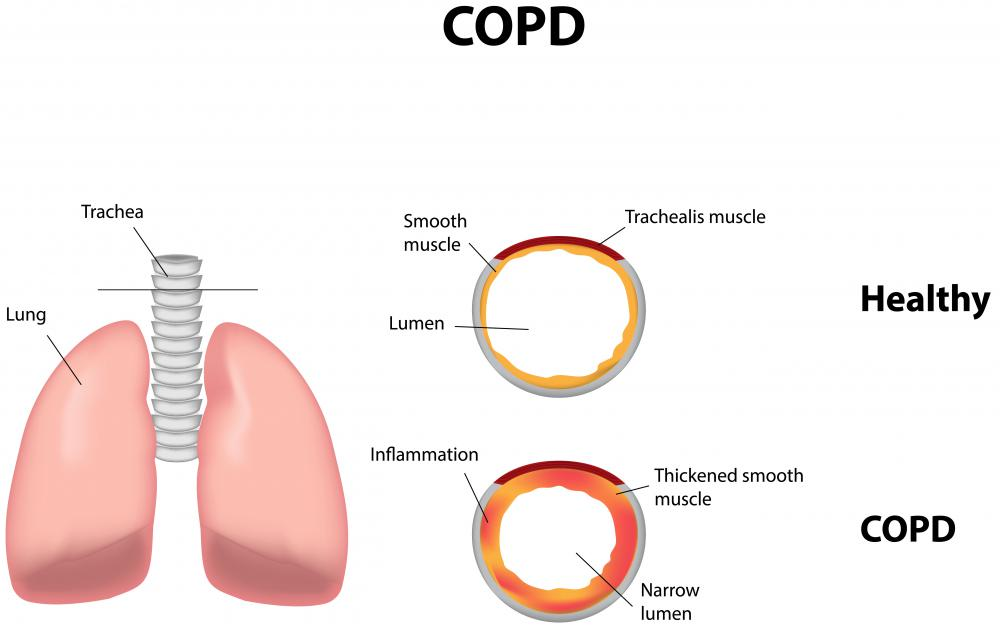 Smoking increases the risk of COPD.