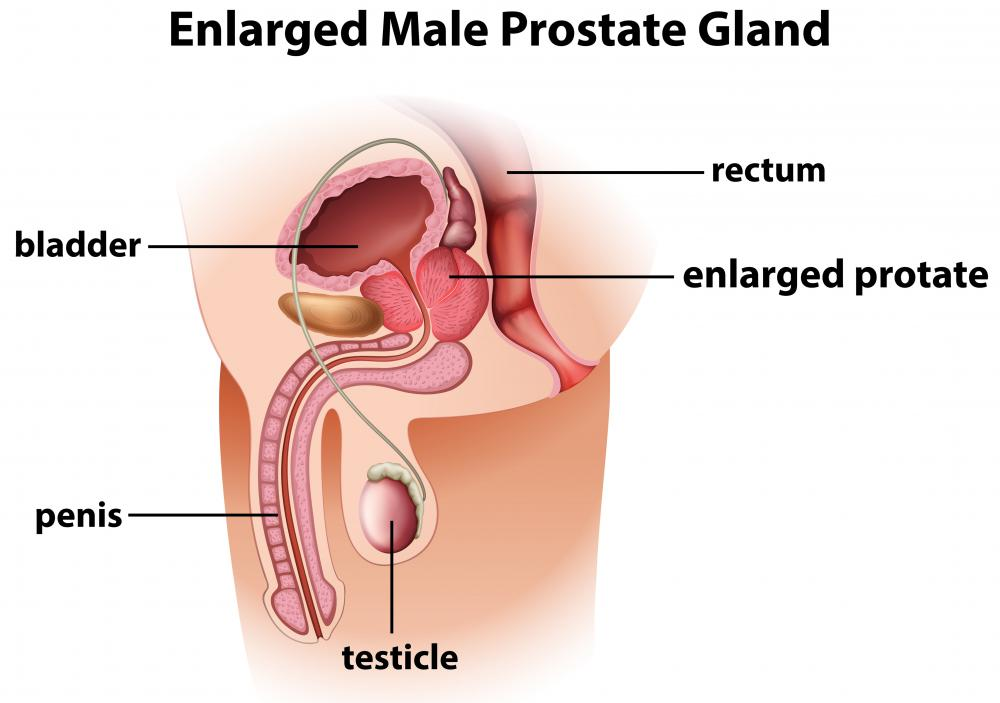 Prostatitis may cause prostate swelling.