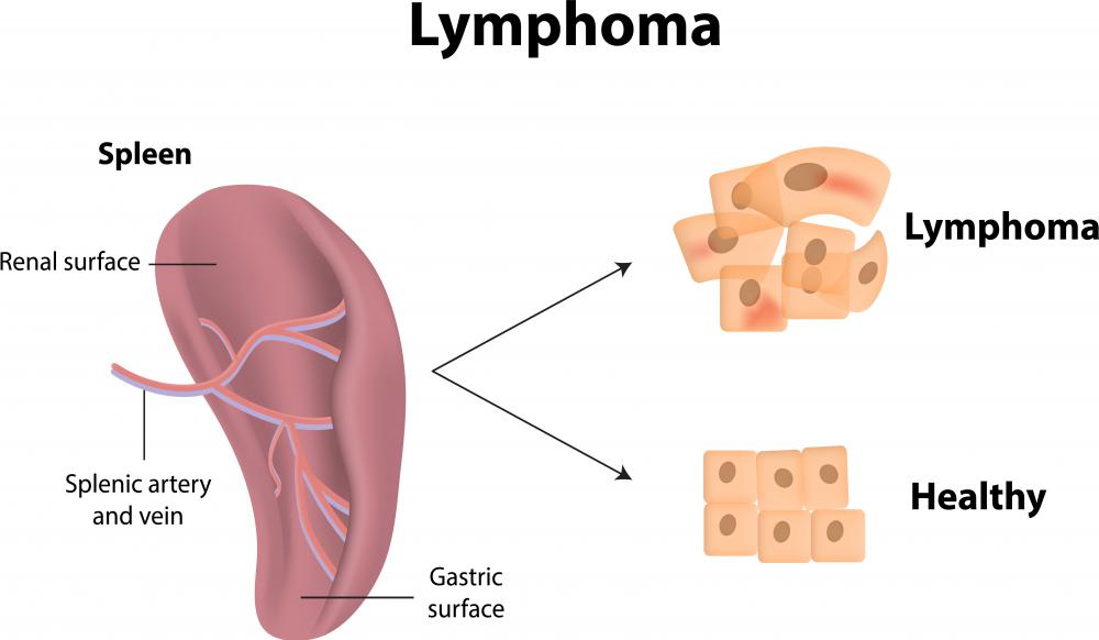 Lymphoma may cause a clot in the splenic vein.