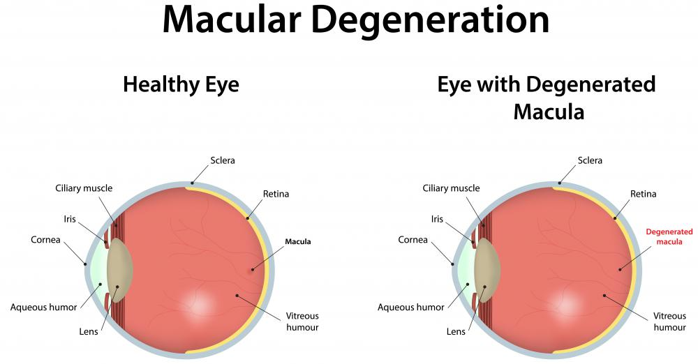 Retinal implants may be necessary because of macular degeneration.