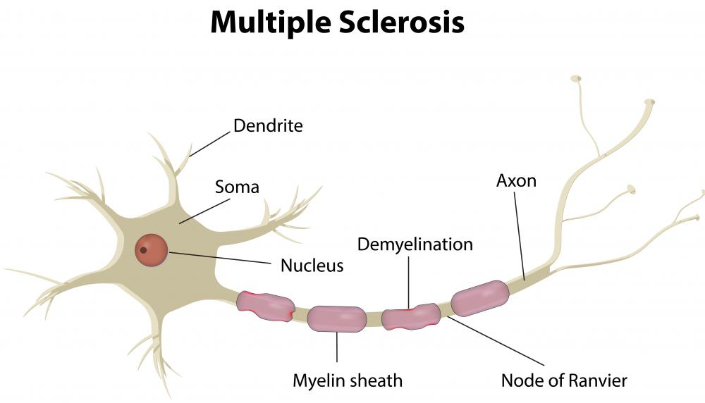 The loss of the myelin sheath insulating the nerves is the hallmark of some neurodegenerative autoimmune diseases, including multiple sclerosis.