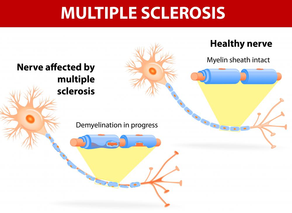 Degenerative diseases like multiple sclerosis may cause changes in white matter.