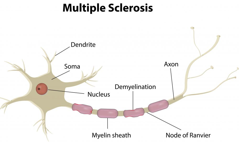 With more medical research, a neutralizing antibody could be beneficial in treating multiple sclerosis.