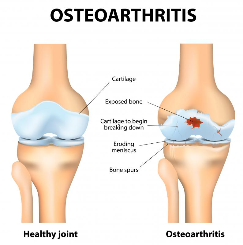 No cure currently exists for osteoarthritis, which can lead to the severe degradation of cartilage on one or more joints of the body.
