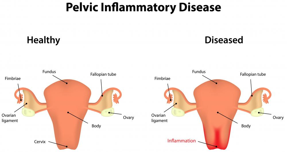 A scarred fallopian tube may be caused by pelvic inflammatory disease.