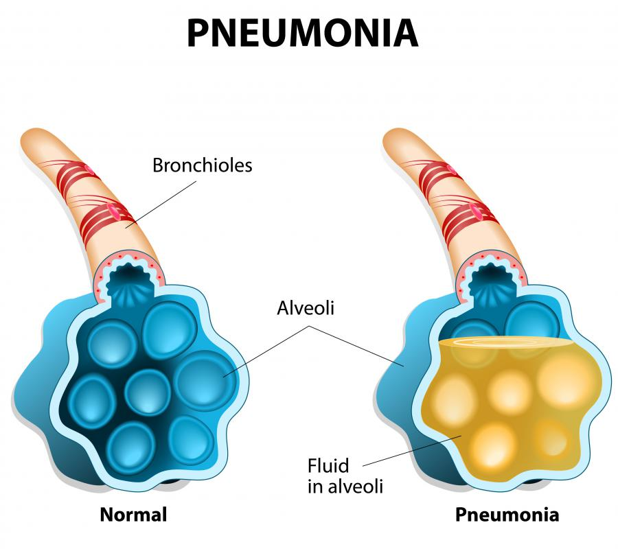 Pneumonia is a secondary infection that can be caused by a primary infection like the flu.