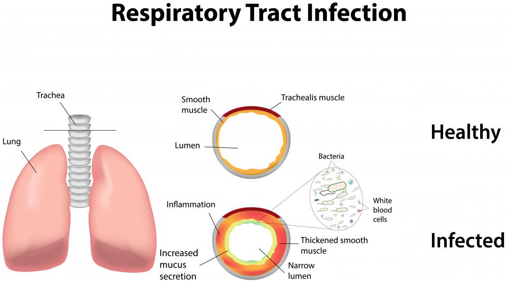 Lower respiratory infections are sometimes treated with ciprofloxacin.
