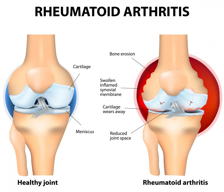 Rheumatoid arthritis can cause cartilage tissue to break down in the wrist and other joints.