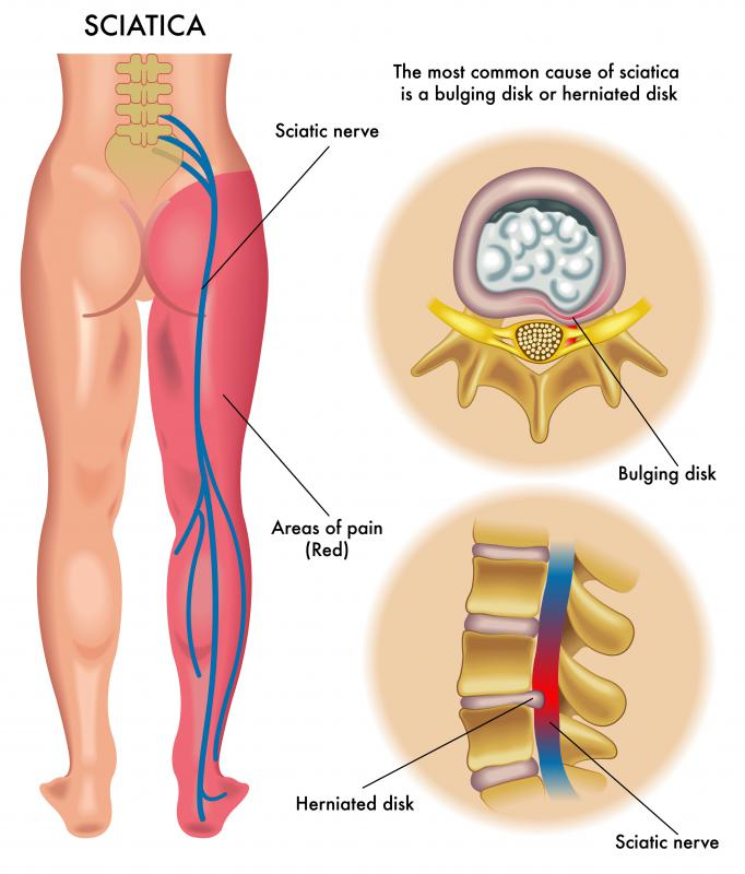 Sometimes caused by disc protrusion, sciatica can lead to pain and numbness down the leg.