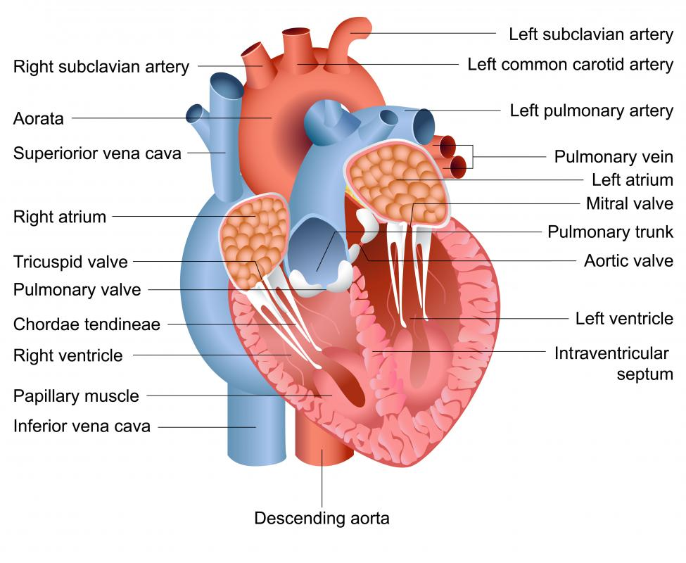 A pacemaker consists of a small generator and two leads that are inserted into the right ventricle and right atrium.