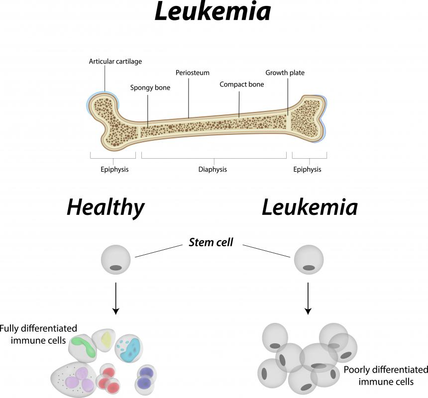 Blood cancers like leukemia may lead to vasculitis.