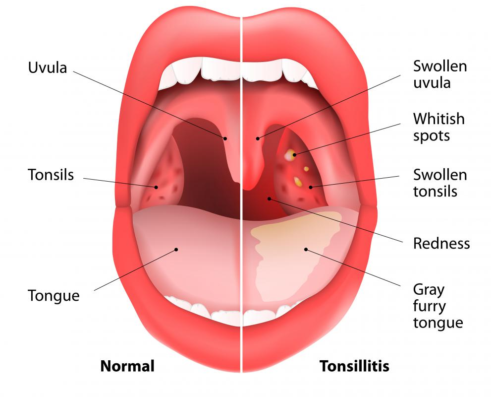 Common visual signs of tonsillitis include red, swollen tonsils.