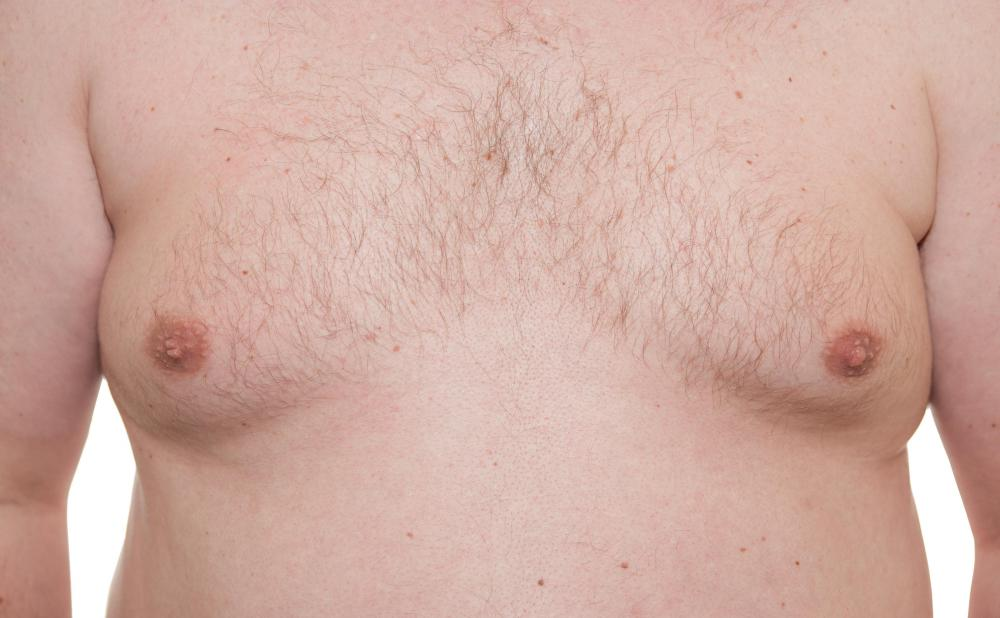 Unusually large breasts in men is known as gynecomastia.