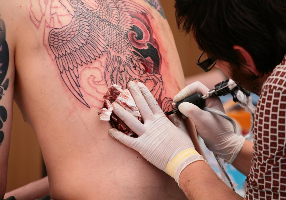 The application of tattoos can cause skin irritation.