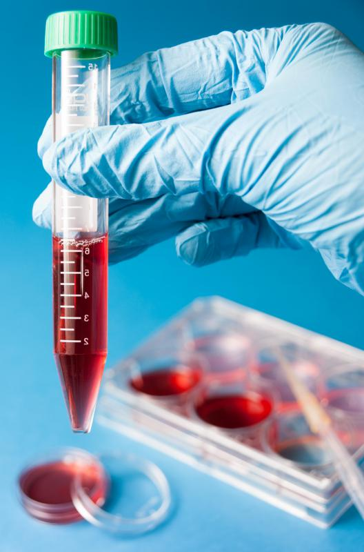 A clinical labaratory assistant may be responsible for drawing blood samples.
