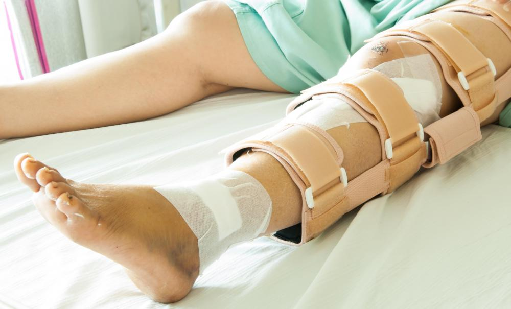 A fracture that jeopardizes the posterior tibial pulse requires immediate surgery to repair.