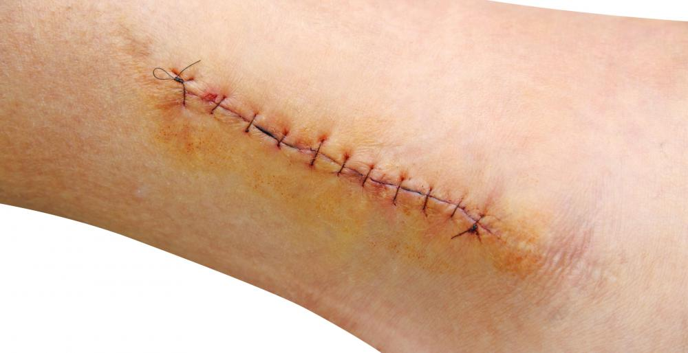 Stitches are used to close surgical wounds.