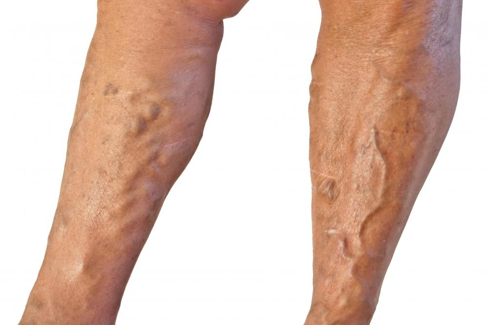 Varicose veins are enlarged blood vessels that bulge out of the skin.