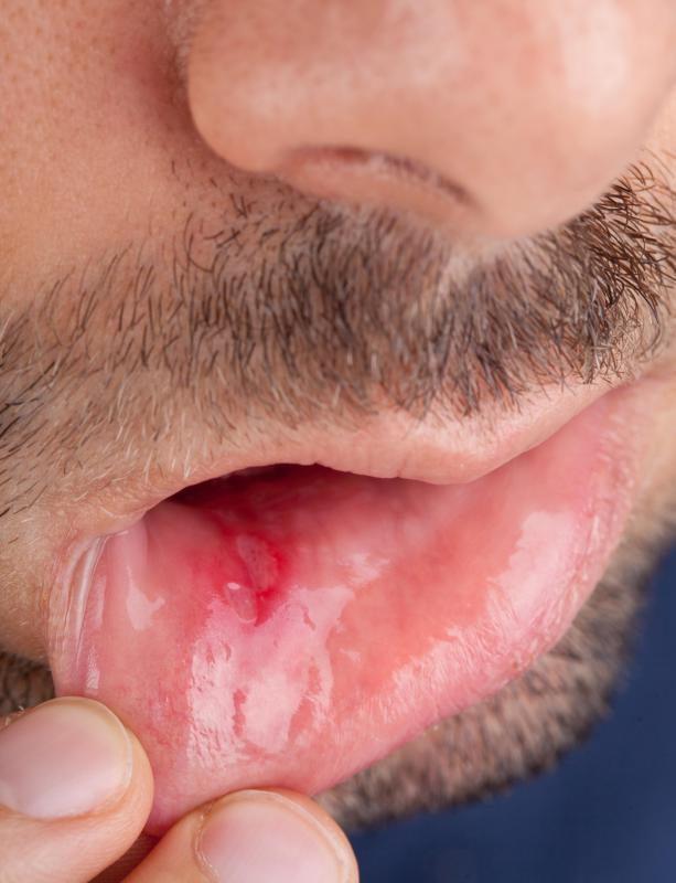 What are Different Types of Mouth Sores? (with pictures)