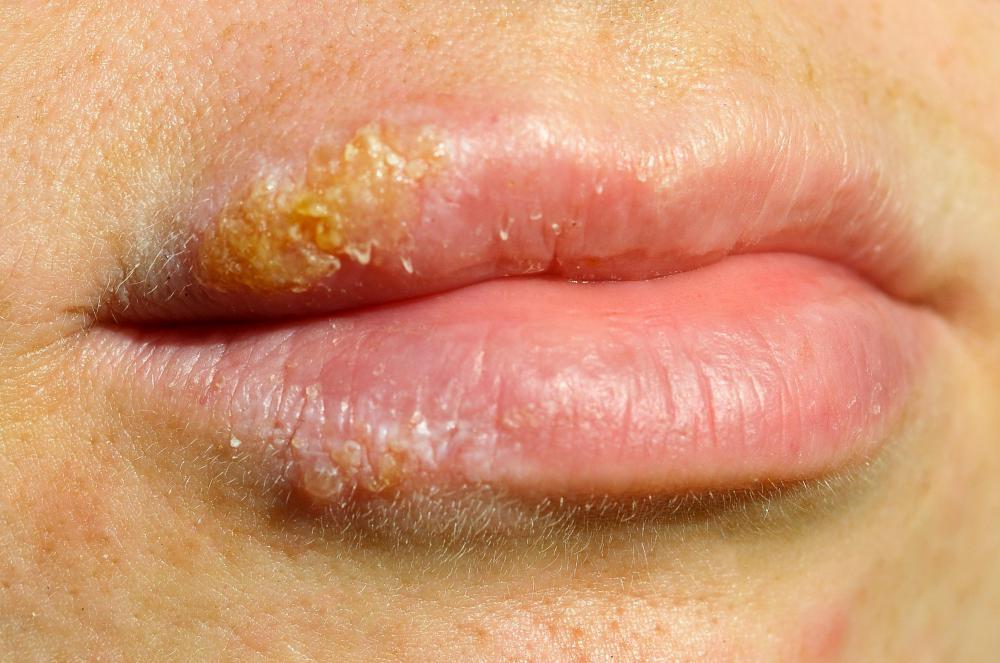 Cold sores are facial lesions caused by a virus, herpes simplex 1.