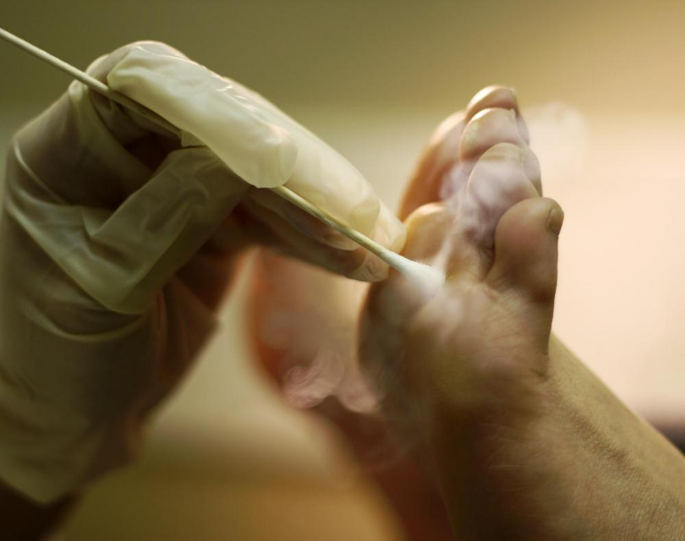 A dermatologist might use liquid nitrogen to remove a wart.
