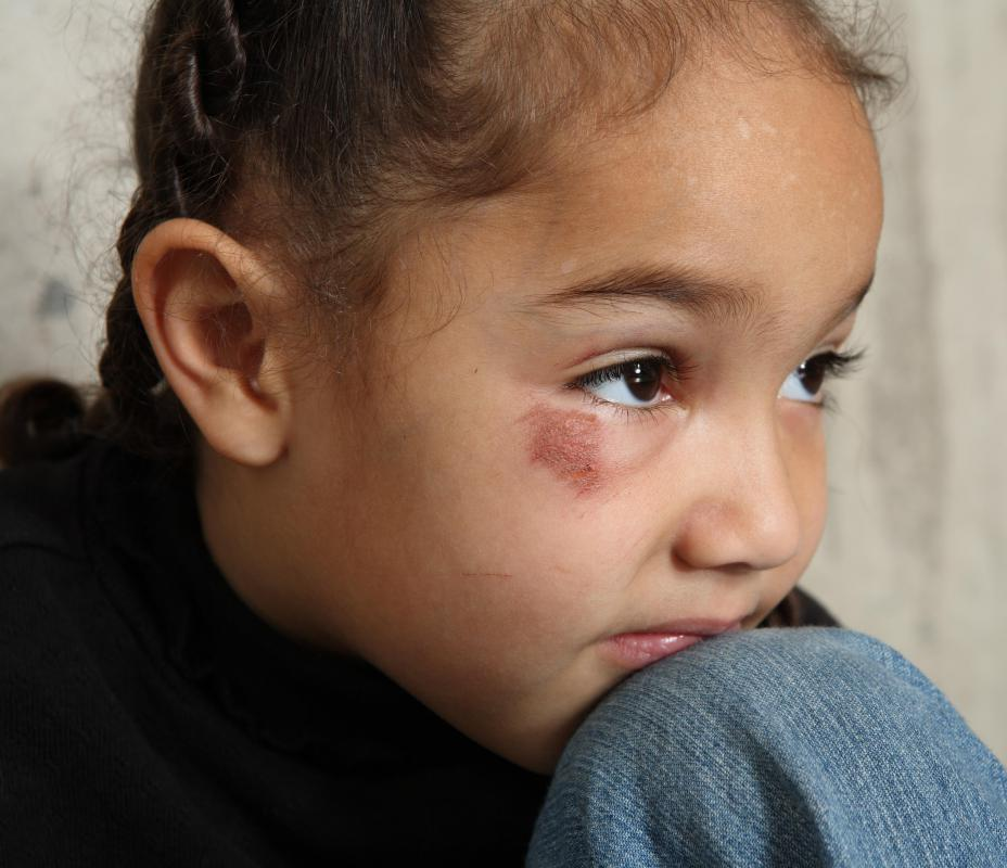 Victims of various types of child abuse may demonstrate symptoms of post-traumatic stress disorder.